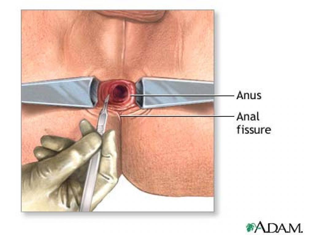 Анальная трещина - это дефект слизистой оболочки анального канала.