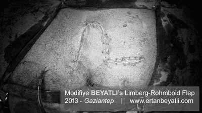 Modified-limberg-flap Ertan BEYATLI's Flap