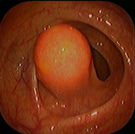 lipoma in the colon