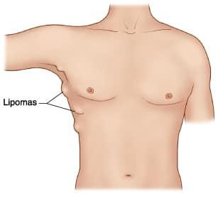 Lipom - yağ bezesi nedir?
