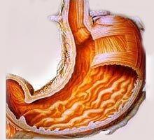 Çölyak hastalığı (Coeliac) Nedir ve nasıl Tedavi Edilir? 4