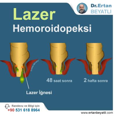 Lazer basur tedavisi - işlem detayı