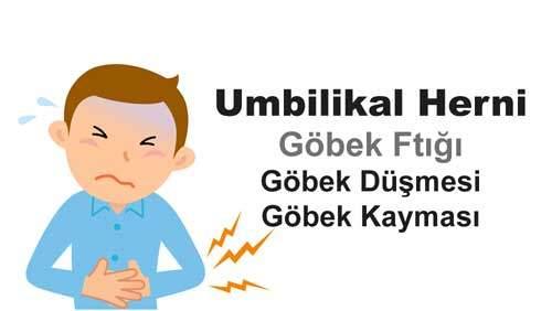 Umbilikal Herni (Göbek Düşmesi)