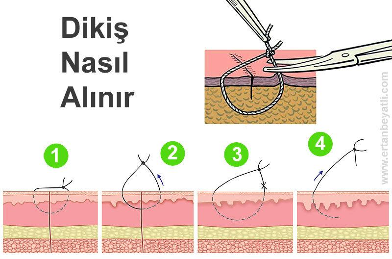 How to Remove Surgical Sutures