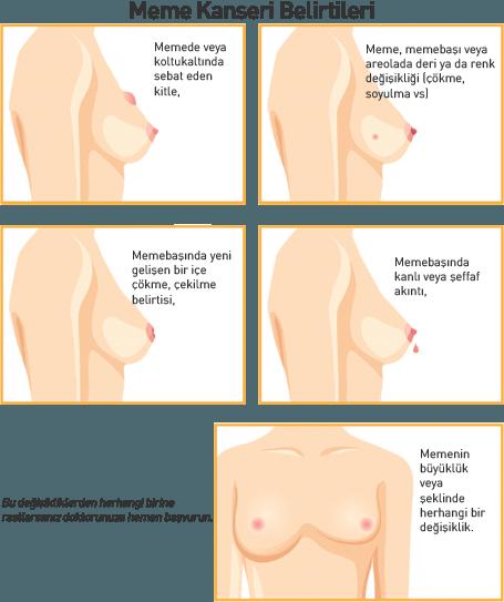 meme_kanseri_belirtileri
