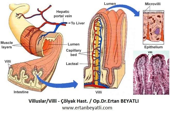 Çölyak hastalığı Pato-fizyolojisi