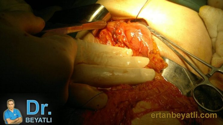 Mide Delinmesi - Ameliyat Sonrası - Peptik Ülsere bağlı mide delinmesi. Edirne/2013