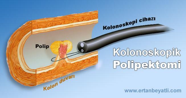 Kolonoskopik Polipektomi