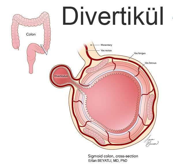 Colon Diverticulum Anatomy