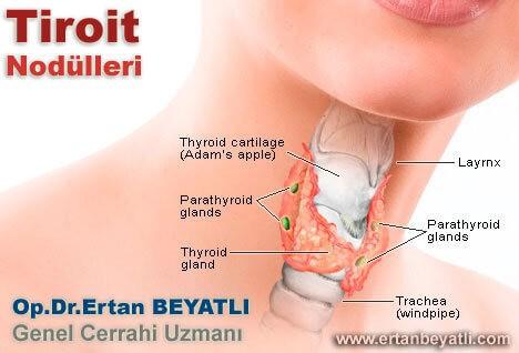 tiroidnodulleri