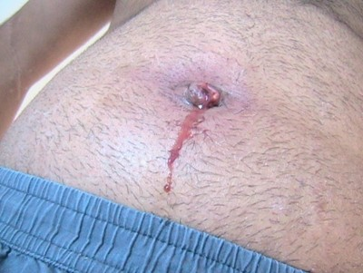 Bloody, thick and foul smelling discharge from the navel in case of inflammation of the navel.