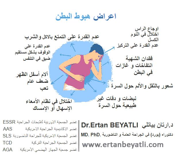 مرض هبوط البطن - النادوف
