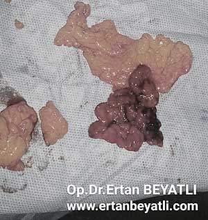 Omentum Torsion - necrotic omentum removed during surgery. Ertan BEYATLI, MD PhD - Zonguldak / Turkey