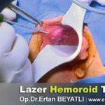 الليزر الحديث في علاج البواسير