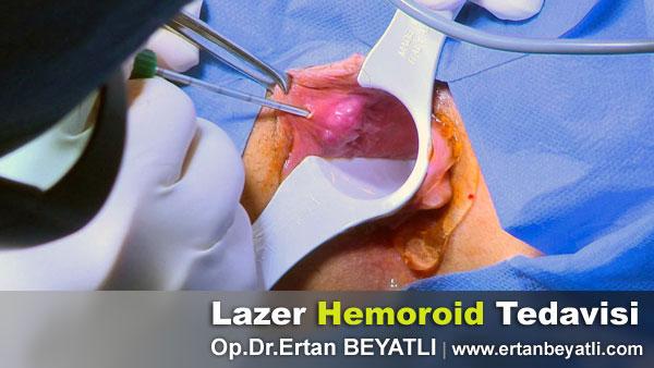 lazer basur - Hemoroid tedavisi nasıl yapılır?