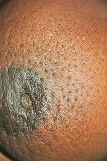 Peau dorange portakal kabuğu görüntüsü
