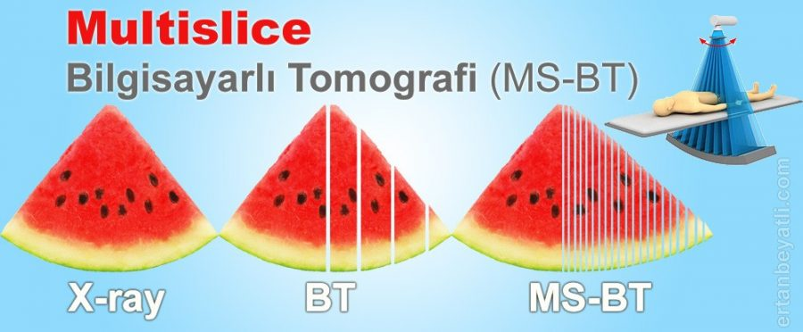 Multislice Tomografi