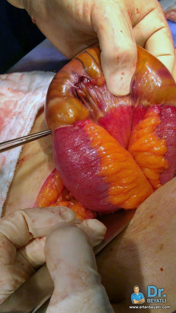 ameliyat esnasında tespit edilen Boğulmuş Fıtık olgusu