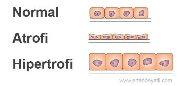 hipertrofi