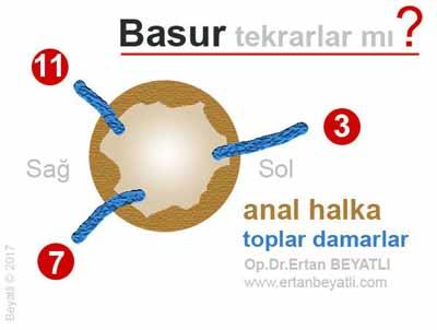 Basur tekrarlar mı? Toplar damarlar saat yönüne göre gösterilmiştir.