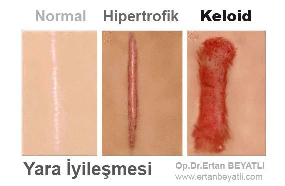 keloid and hypertrophic scar difference