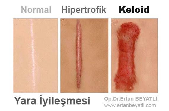 keloid ve hipertrofik skar farkı