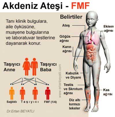 FMF - Ailevi Akdeniz Ateşi Tedavisi nasıl olmalı? 1