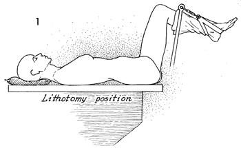 jinekolojik litotomi pozisyonu
