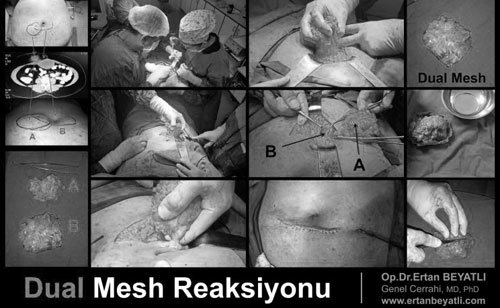 Dual Mesh (Patch) Reaction Surgery