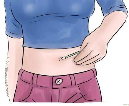 Remedy for navel inflammation