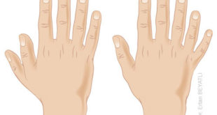 6. Parmak (Polidaktili) nedir ve nasıl tedavi edilir?