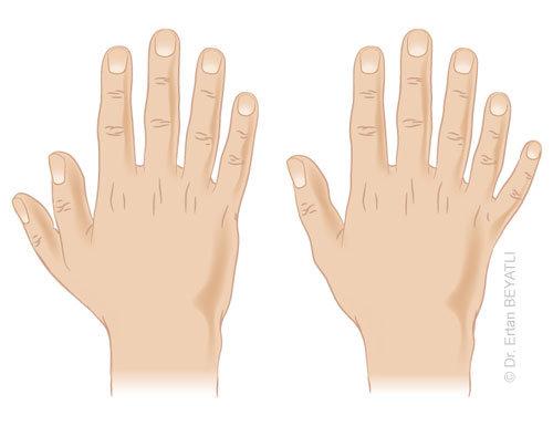 Polidaktili nedir? fazla parmak