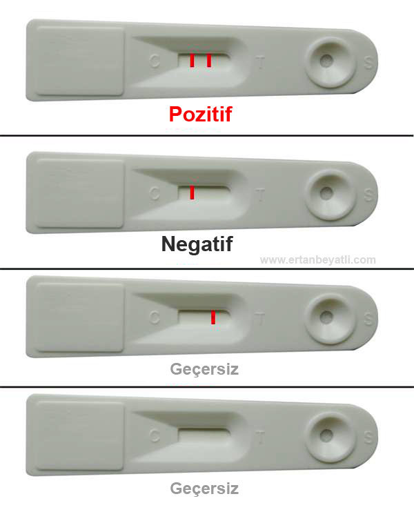 The meaning and interpretation of the fecal occult blood test GGK. What do single and double lines mean?