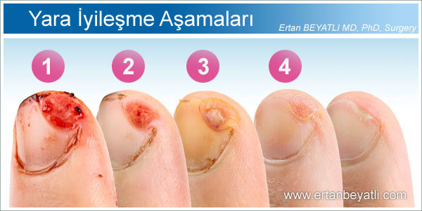 Stages of wound healing