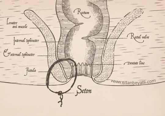 fistül için seton hipokrat zamanında vardı