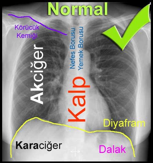 Akciğer Grafisinin - PA ACG