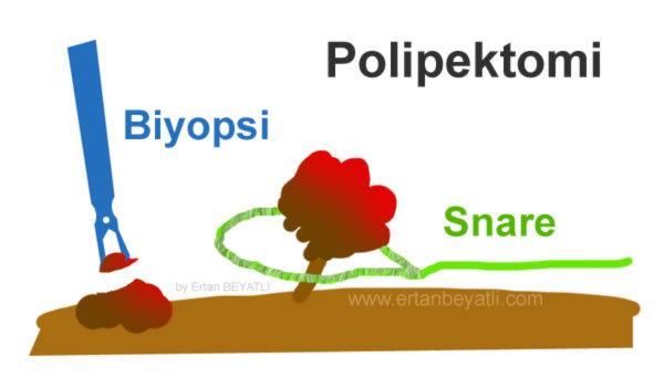 Polip Polipektomi nedir?