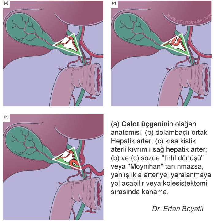 """(a) The usual anatomy of the Calot triangle; (b) tortuous common hepatic artery; (c) tortuous right hepatic artery with short cystic artery; (b) and (c) if the so-called """"caterpillar turn"""" or """"Moynihan"""" is not recognized, it can lead to accidental arterial injury or bleeding during cholecystectomy."""