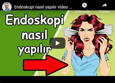 How to do an endoscopy video (with anesthesia) - Dr. Ertan BEYATLI